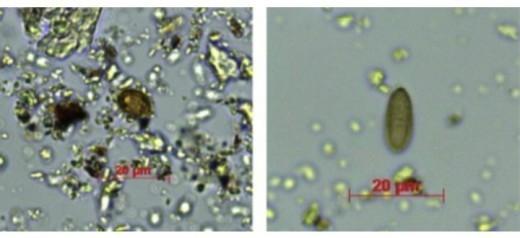 Микроскопические свидетельства показали: женщина употребляла в пищу болетовые грибы и жареные на углях пластинчатые грибы, а также семена и коренья растений с низким уровнем крахмала и пыльцу сосны.