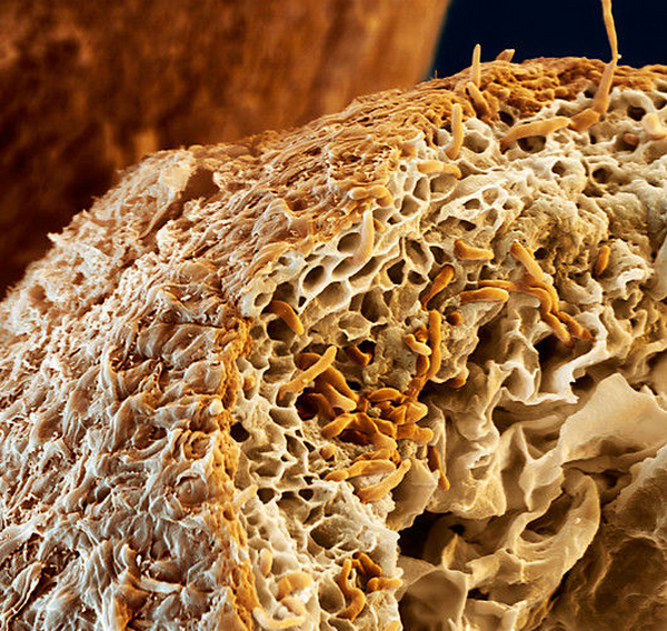 Микориза: грибные гифы (оранжевые), пронизывающие кору корней дерева